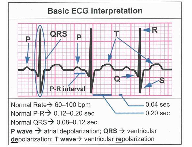 basic ecg rhythm