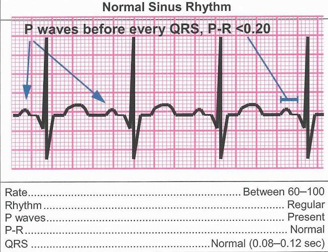 normal_sinus_rhythm